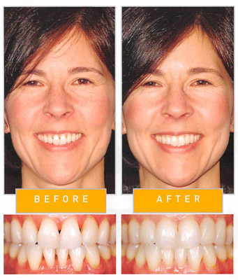 Bioclear Before and After