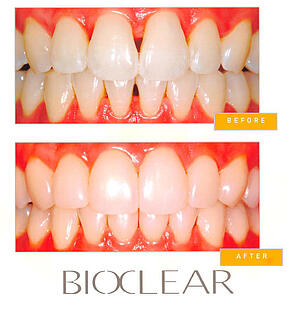 bioclear-before-and-after
